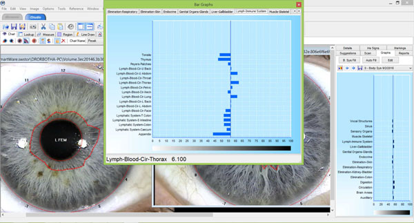 Iridology software